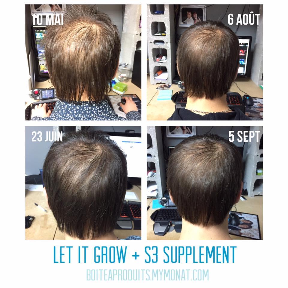 Résultats des produits Monat après 4 mois d'utilisation sur des cheveux clairsemés.